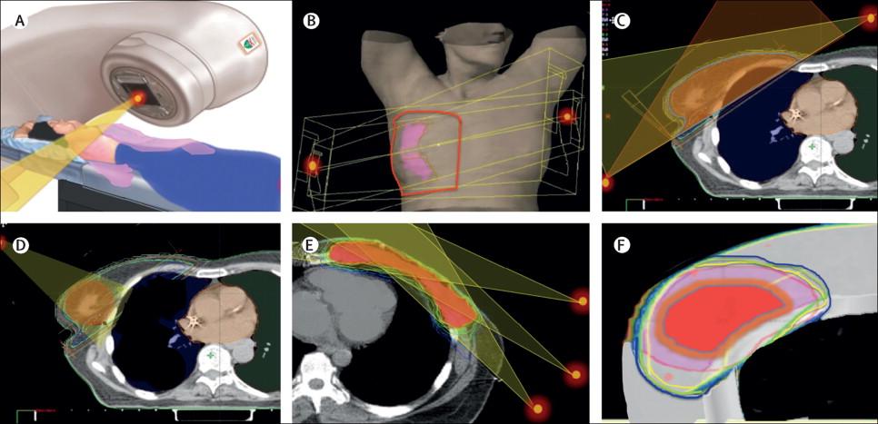 Η Συμβολή της Ακτινοθεραπείας στη Διατήρησης του Μαστού