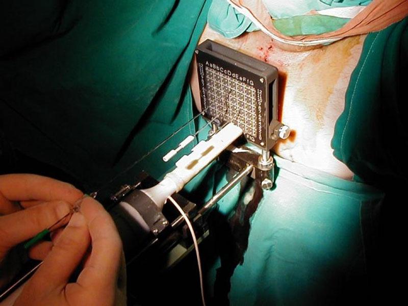 Βραχυθεραπεία Προστάτη με τη Μέθοδο της Εμφύτευσης Μόνιμων Κόκκων Real Time: Με Σχεδιασμό και Πραγματική Απεικόνιση Κατά την Διάρκεια του Χειρουργείου.